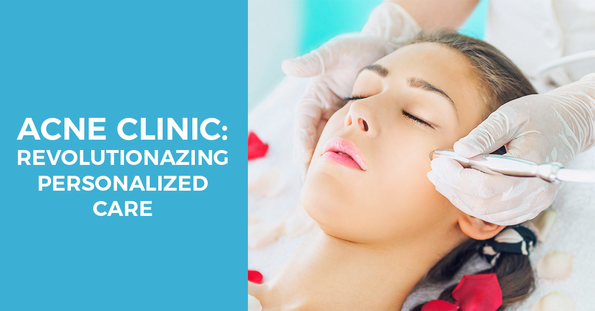 Acne clinic treatment revolutionazing personilized care