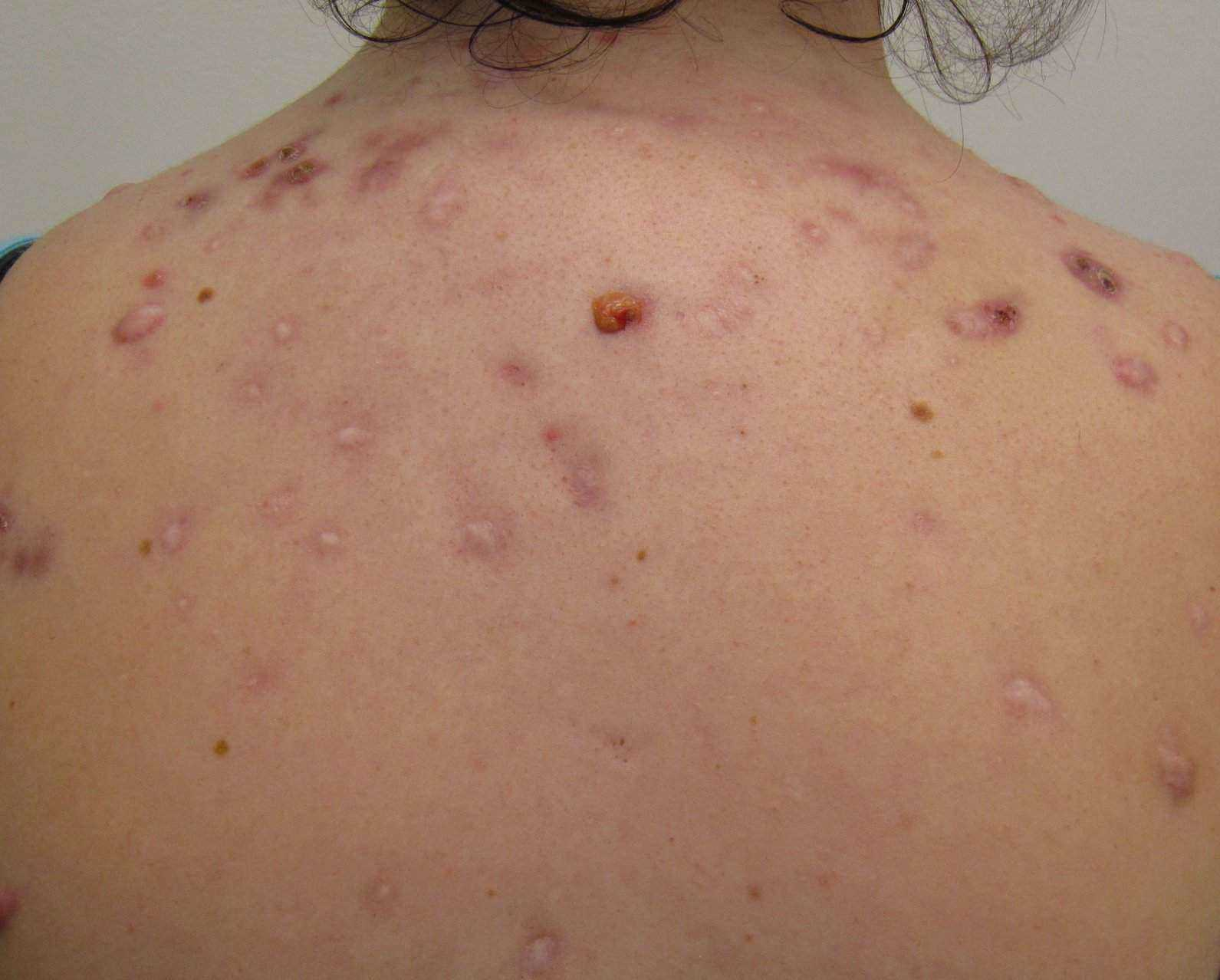 Body acne during pregnancy