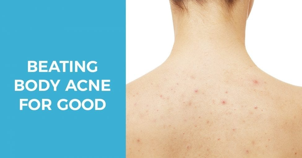 Beating body acne for good