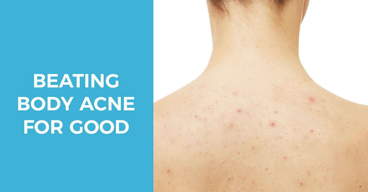 How To Prevent And Treat Body Acne A Complete Guide