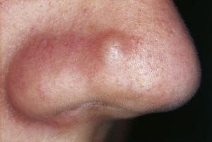 One of the most common types of acne - papules