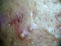 Pustules - type of acne