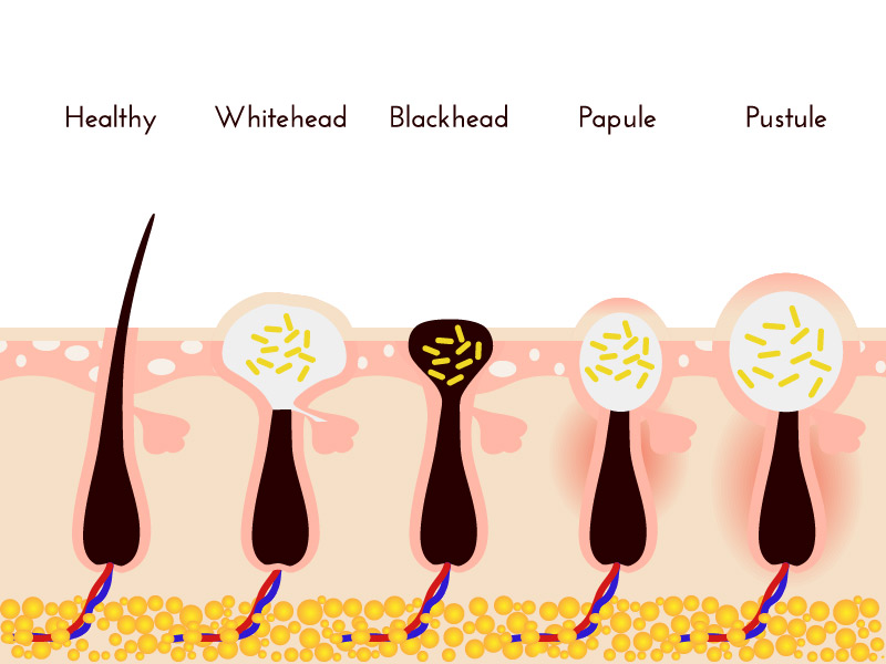 Types of body acne