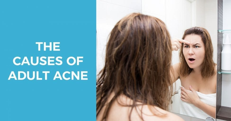 causes of adult acne