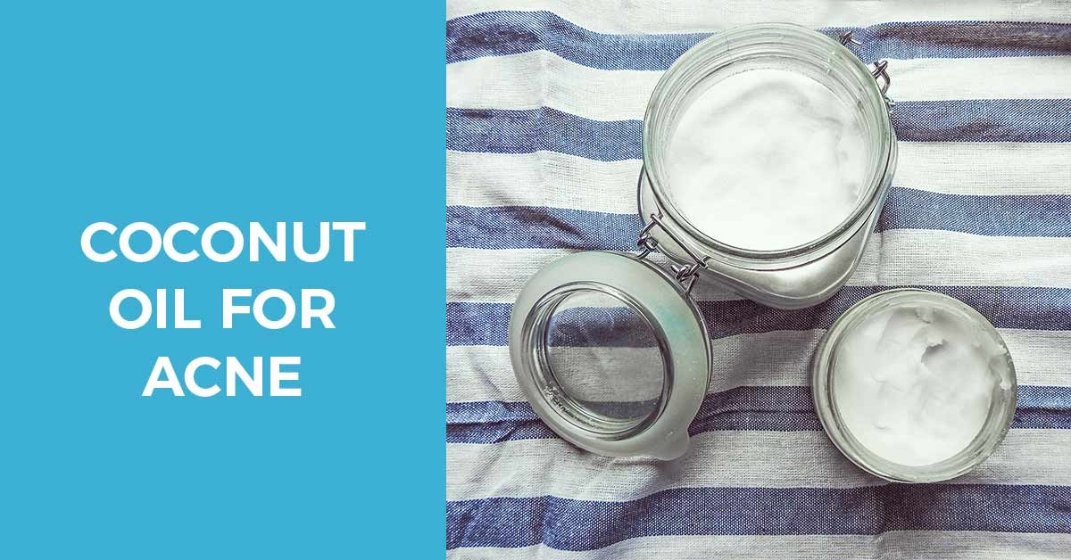 Benefits of coconut oil for acne prone skin