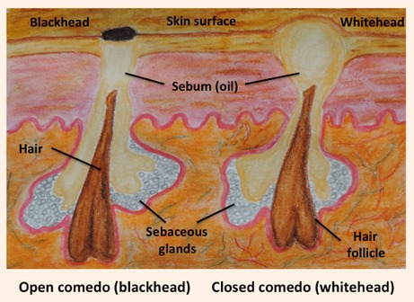How are blackheads and whiteheads formed