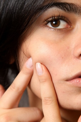 Acne scars are created by squeezing