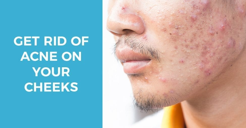 proven ways to get rid of acne on cheeks