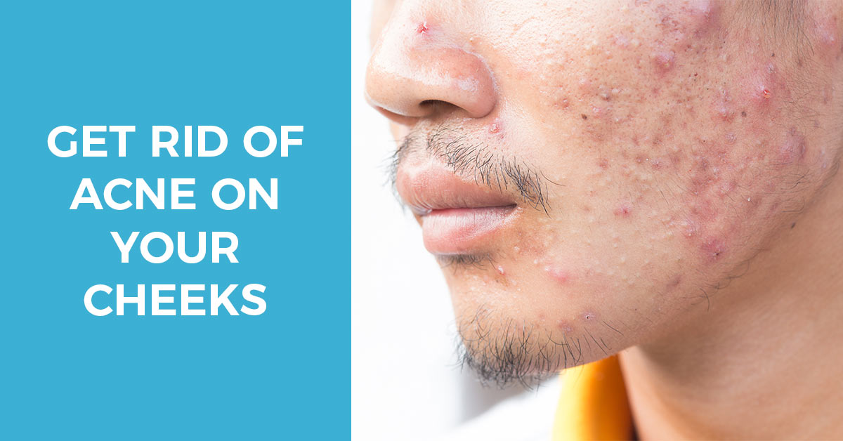 Acne on Cheeks – How to Get Rid of Stubborn Cheek Acne, Treatments & Steps to Prevention