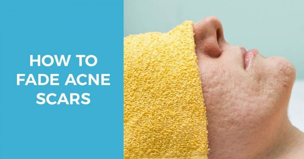 Guide how to fade acne scars