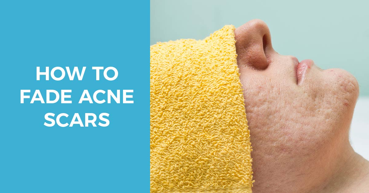 Your Go-To Guide on How to Fade Acne Scars