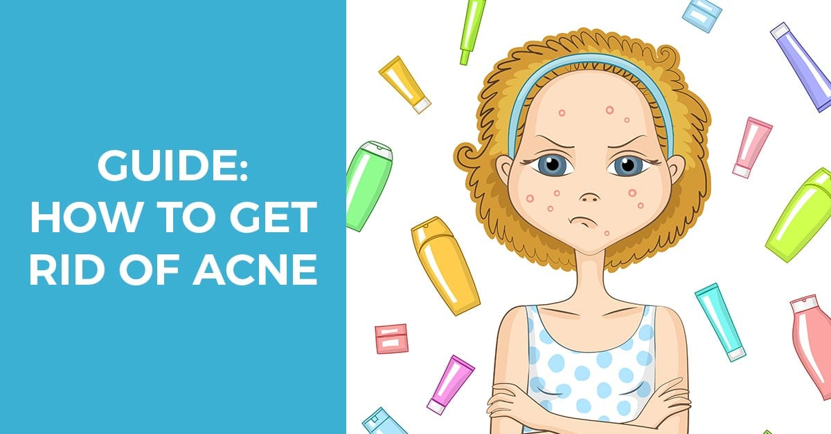 Comprehensive guide how to get rid of acne