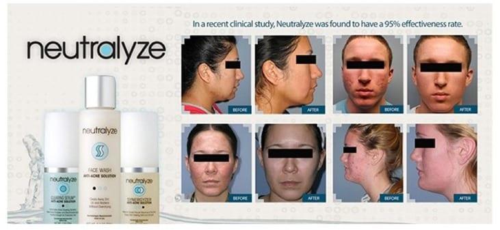 Neutralyze acne solution