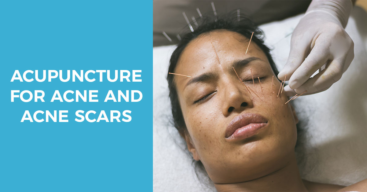 Acupuncture for acne and acne scars