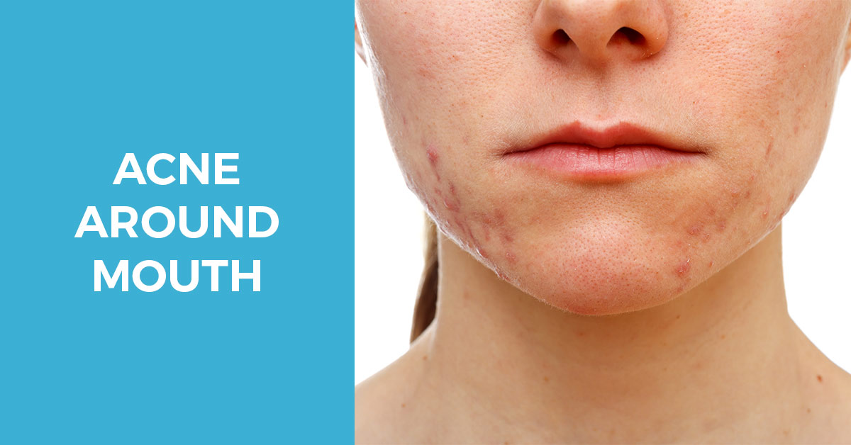 Acne around mouth