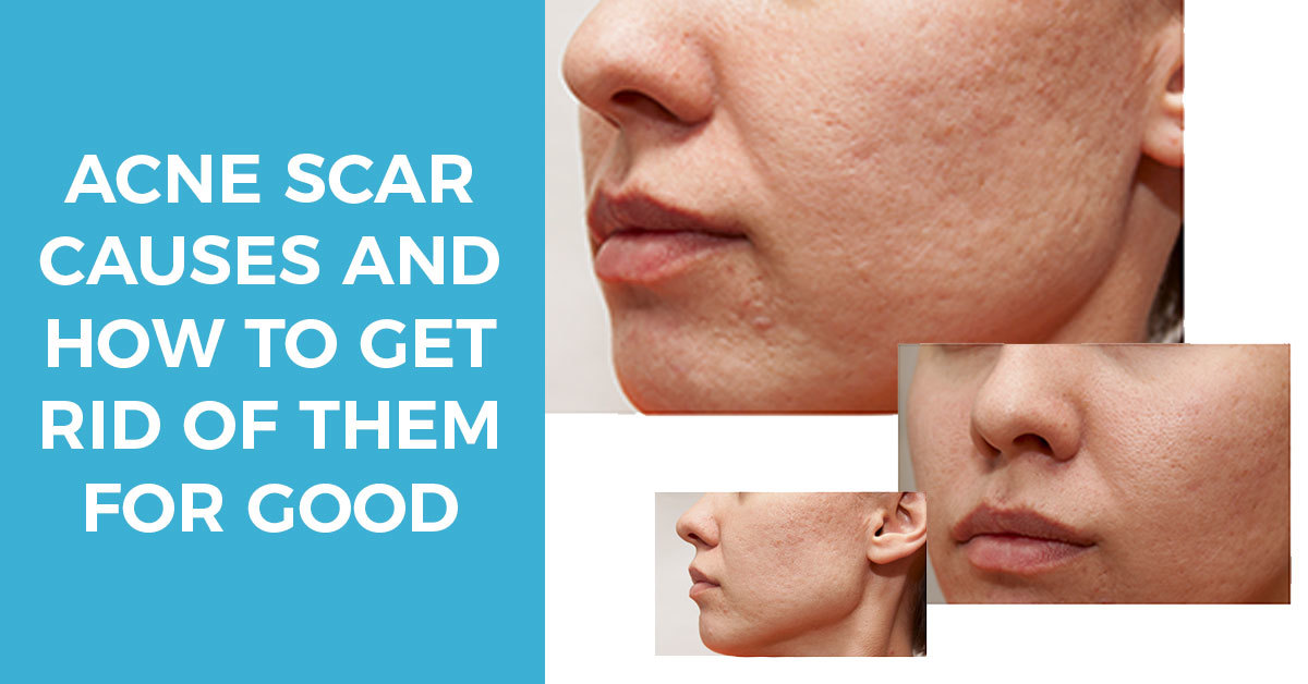 Acne Scar Causes and How to Get Rid of Them for Good