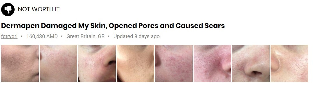 Find out why Dermapen for acne scar removal is worth a shot