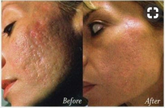 dermapen-for-acne-scars-before-after-photo