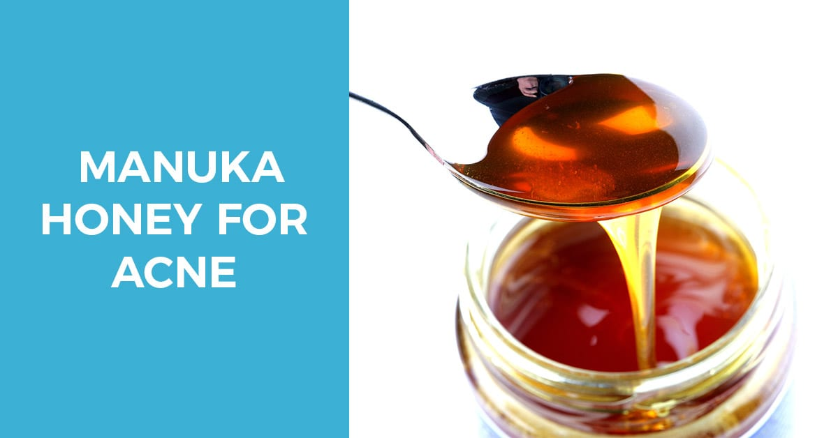 How manuka honey helps with acne pro skin