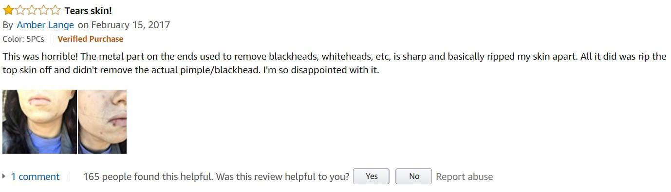BESTOPE-Blackhead-Remover-customer-review-4