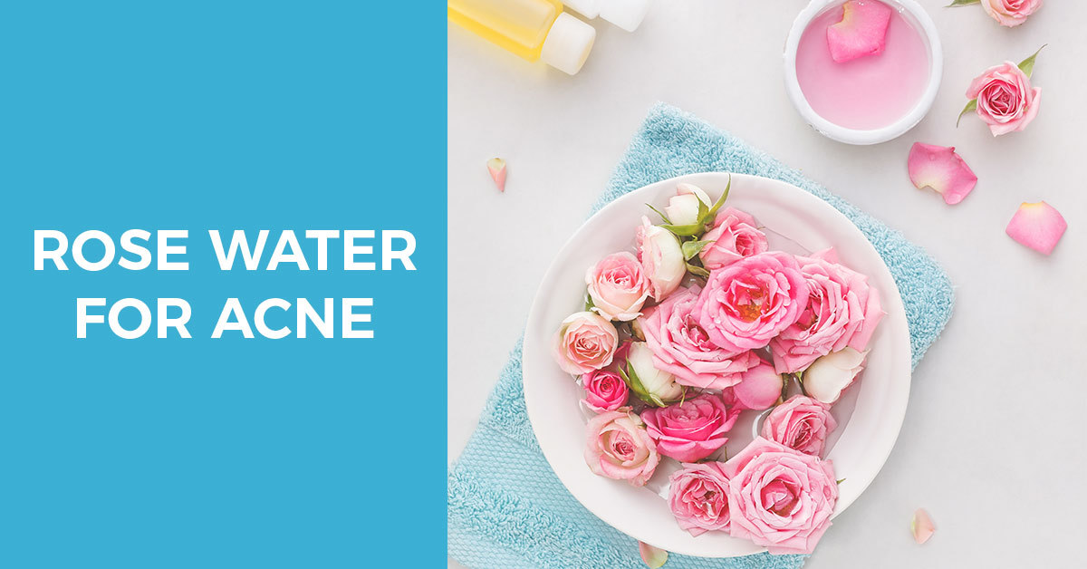 Rose Water for Acne 101: A Guide to Clearer Skin