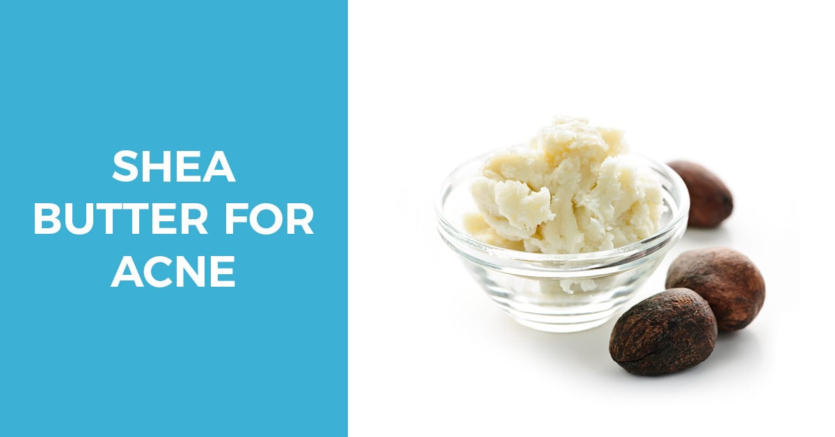 Shea Butter for Acne – Assessing Its Effectiveness