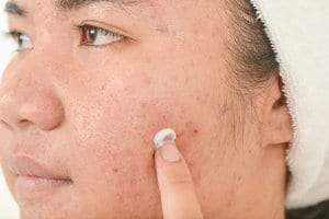 mupirocin-vs-neosporin-for-acne