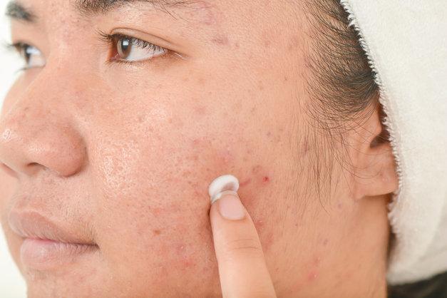 mupirocin-vs-neosporin-for-acne
