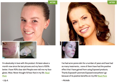 Exposed Skin Care Reviews Must Read Before You Buy The Kits