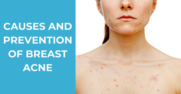 How to Prevent and Treat Breast Acne Effectively
