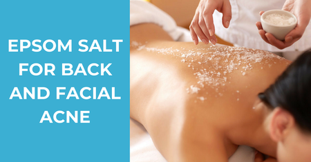 How to Use Epsom Salt for Back and Facial Acne Effectively – 8 All-Natural Recipes