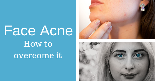 Face Acne – Facial Acne Prevention and Treatment